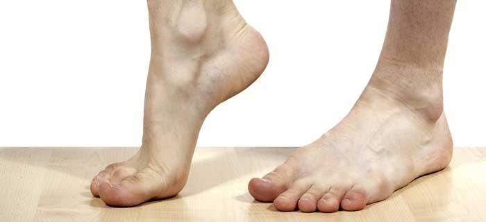 Barnebeinte føtter illusterer fotsår og fotpleie ved diabetes