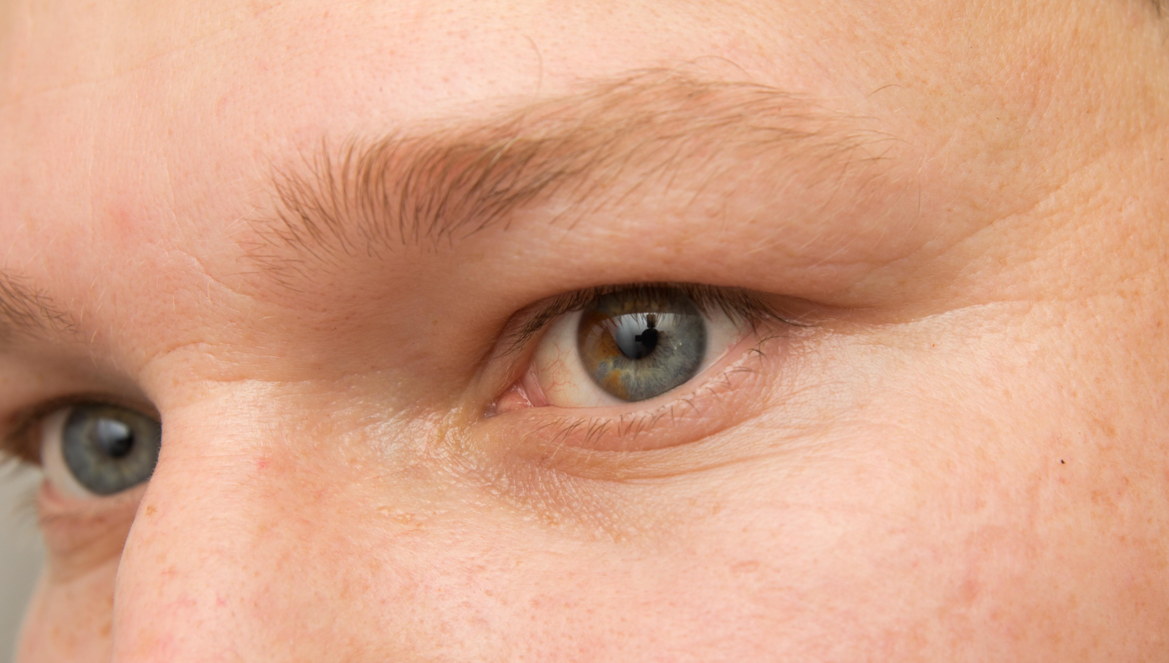 Diabetes kan gi senskader på blodårene i øynene.
