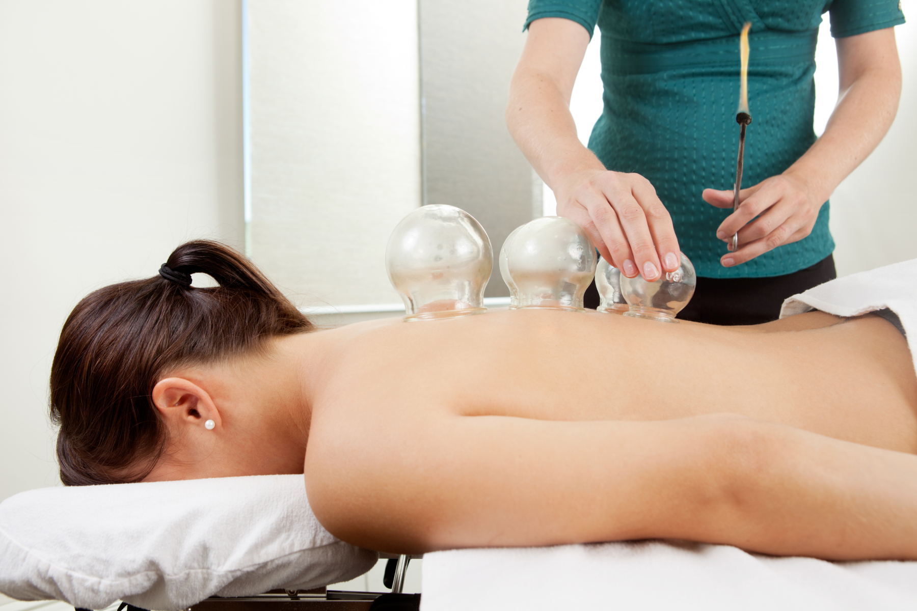 Picture of a woman receiving cupping treatment