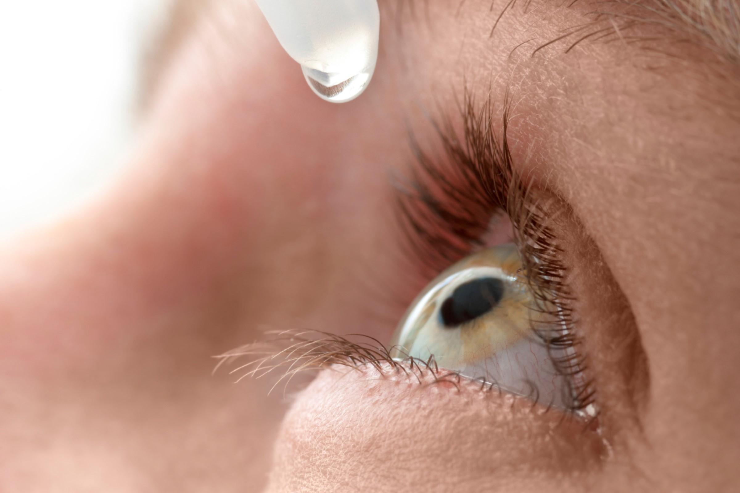 Nærbilde av en person som bruker øyedråper