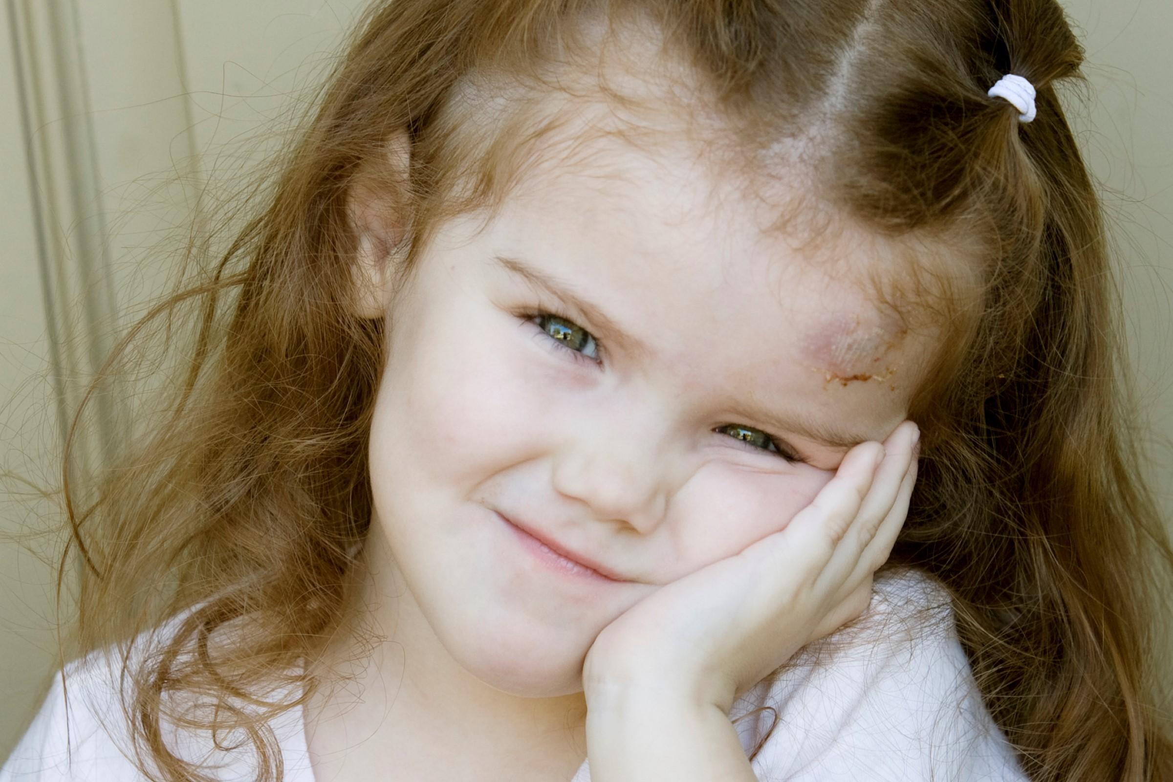 Barn som slår hodet kan lett få hjernerystelse
