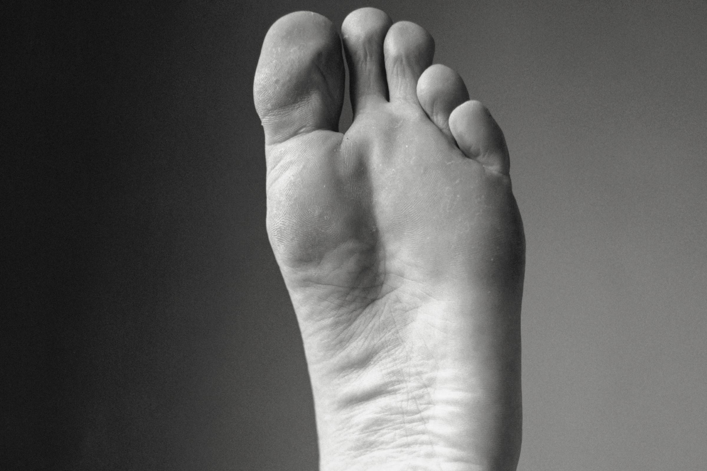 Bilde av en fotsåle med podagra i stortåa.