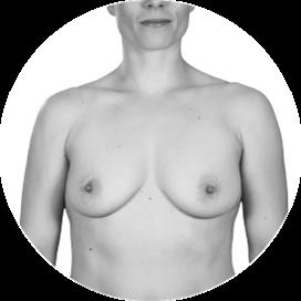 Bilde av kvinne med bare bryster