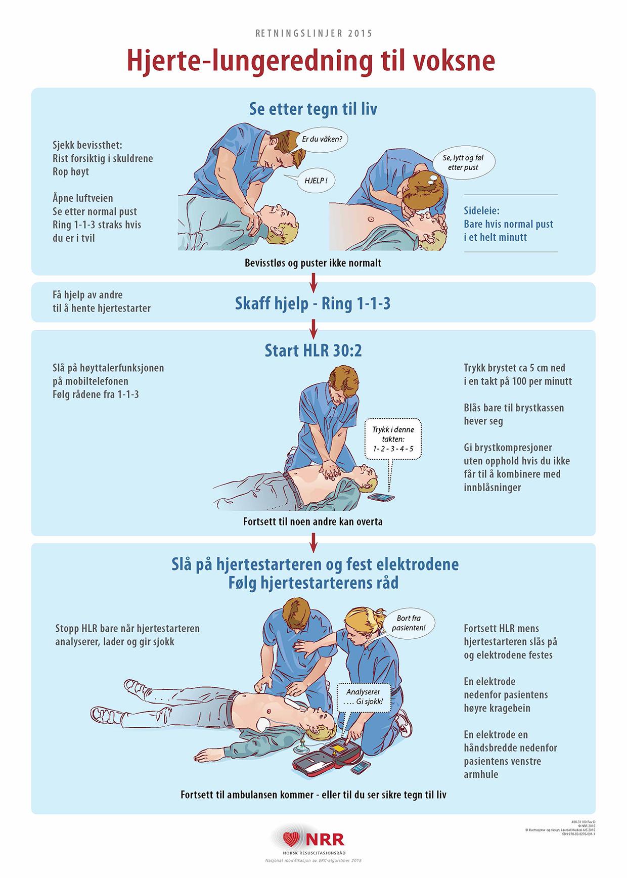 Plakat som viser hvordan man utfører hjerte-lungeredning på voksne
