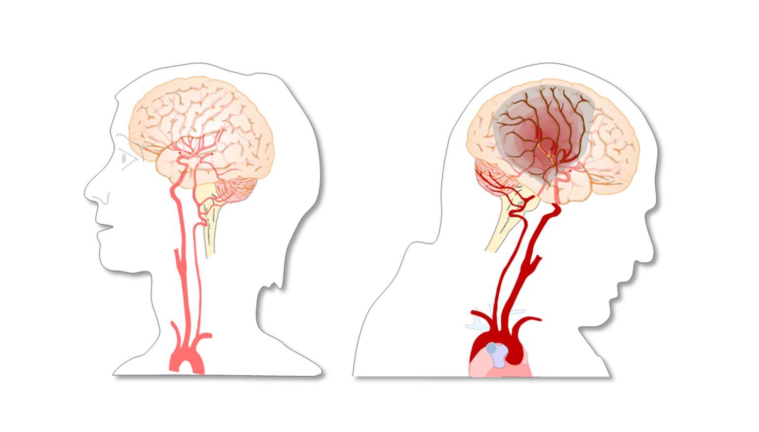 Illustrasjonsbilde av blodpropp ved hjerneslag